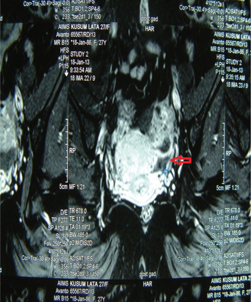 Figure 1: MRI showing unilateral tubo-ovarian mass (arrow) in a case of FGTB