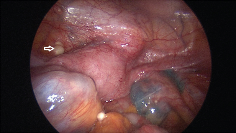 Figure 8: Laparoscopy showing caseous nodules on peritoneum (arrow), hydrosalpinx in fallopian tubes and adhesions pouch of Douglas in a case of FGTB